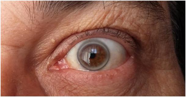 kep - arcus cornea1