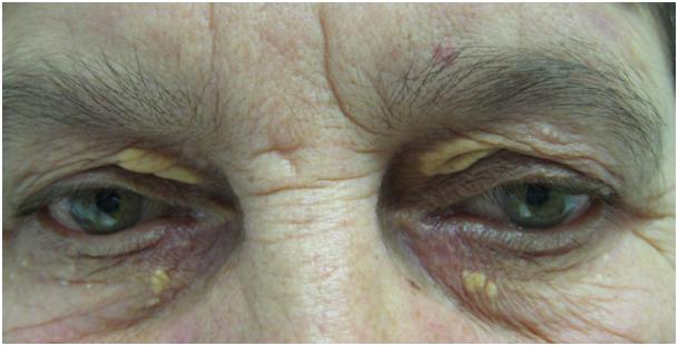 kep - arcus cornea2