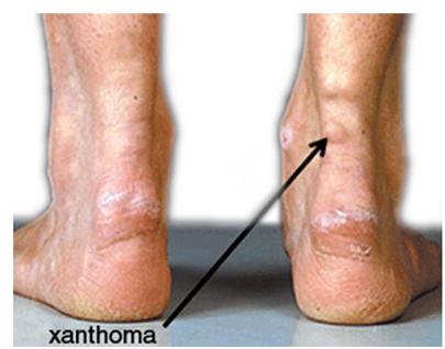kep - xanthoma1
